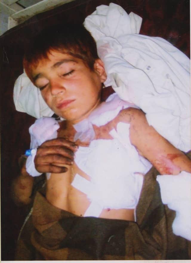 Image of injured boy named Naeemullah from Datta Khel district